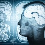Warum Mikronährstoffe für das Gehirn wichtig sind