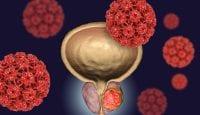 Prostatakrebs: Höheres Risiko bei Männern mit entzündlichen Darmerkrankungen