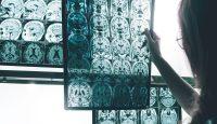 Lichttherapie: Die Antwort auf Alzheimer?
